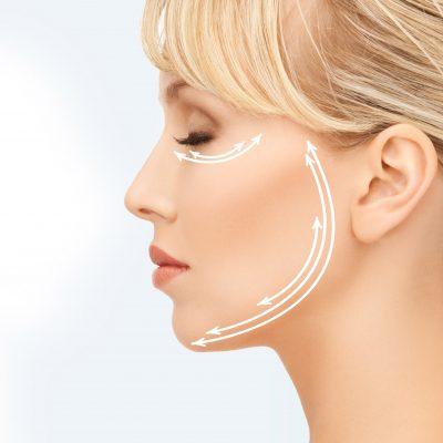 Flaccidesa facial